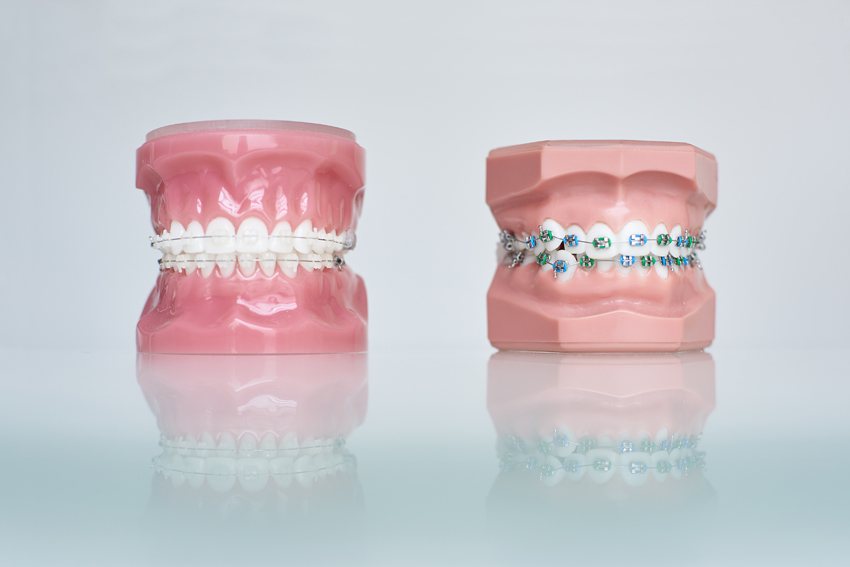 Aparaty stałe i aparaty stałe ortodontyczne
